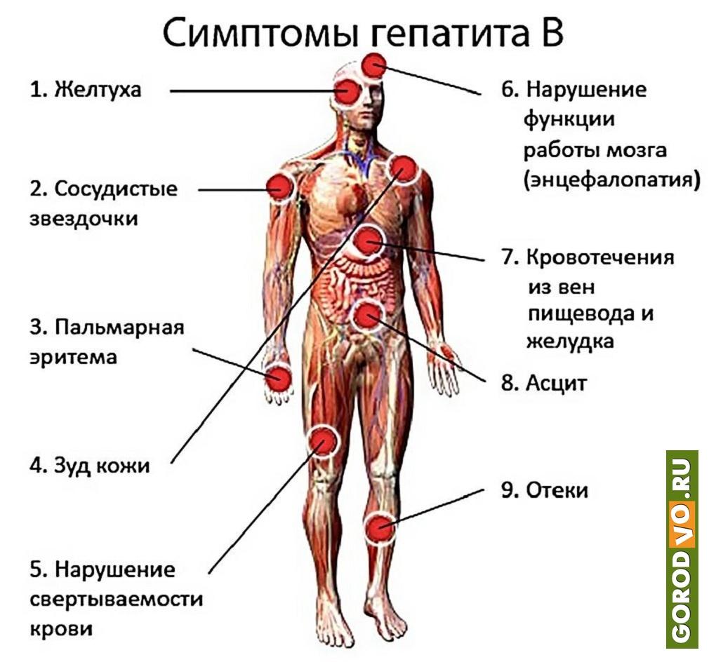 Вирусный гепатит в - симптомы и лечение. журнал медикал