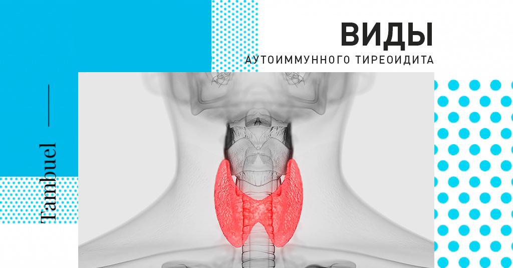Острый тиреоидит щитовидной железы: причины, симптомы, лечение и профилактика заболевания