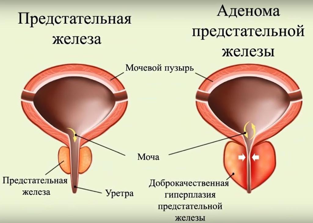 Аденома простаты у мужчин: симптомы, лечение, удаление и последствия