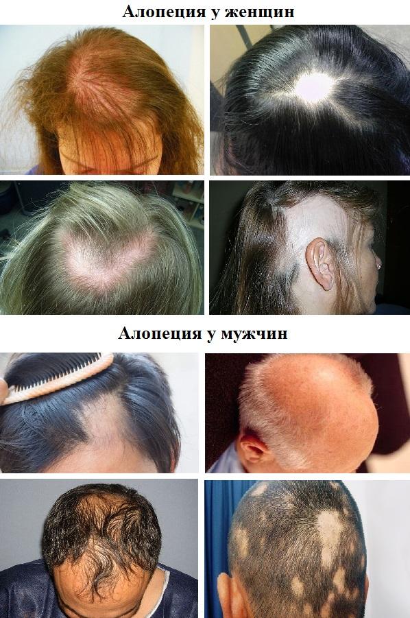 Алопеция — причины и лечение у женщин и мужчин, препараты