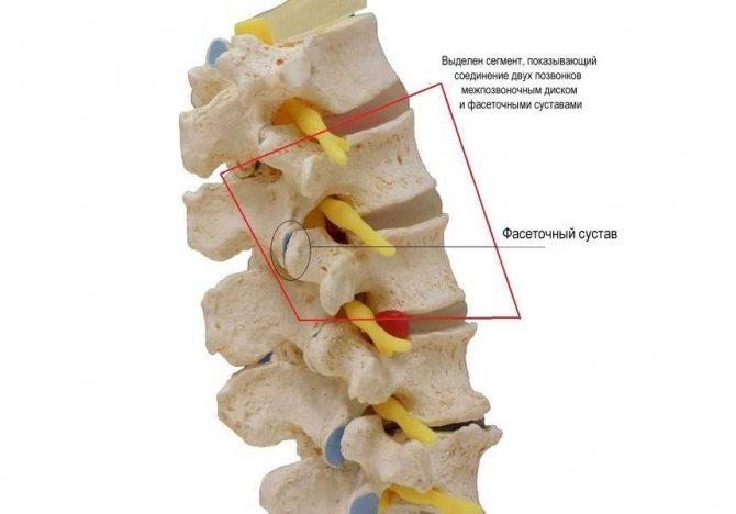 Спондилоартроз пояснично-крестцового отдела позвоночника: что это такое, лечение, гимнастика