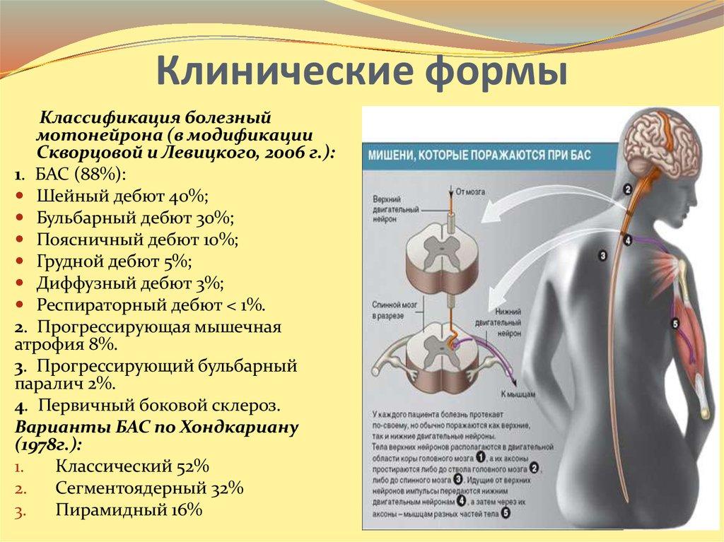 Диагноз бас - что это: симптомы, этапы развития, методы лечения