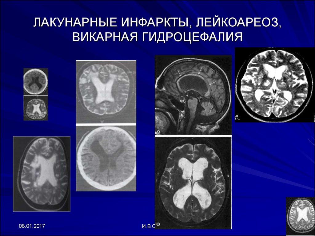 Лейкоареоз головного мозга: причины, диагностика, лечение