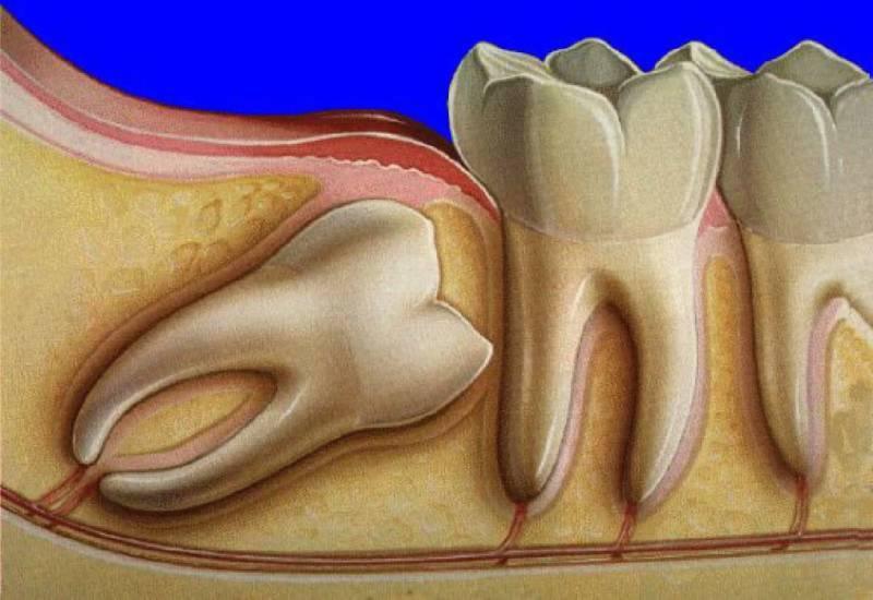 Что делать когда режется зуб мудрости: советы специалистов - много зубов