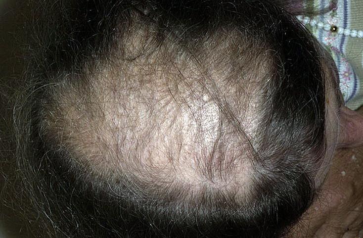 Алопеция - это что такое? виды, причины, и лечение выпадения волос