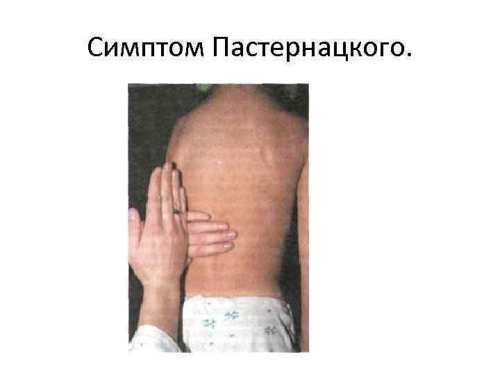 Симптом поколачивания с обеих сторон. симптом пастернацкого — что это такое, диагностика и лечение