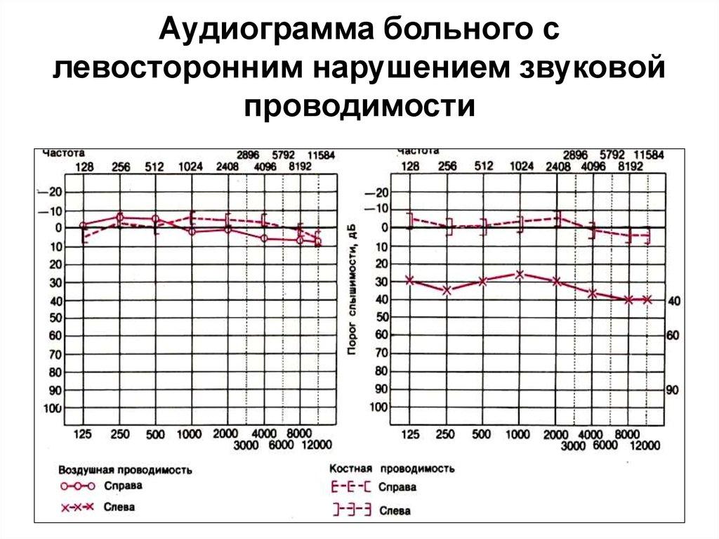 Как проводится тональная аудиометрия, в чем отличия от аудиограммы, стоимость