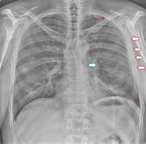 Тяжело дышать, давит на грудную клетку, не хватает воздуха - что это может быть и что делать при таких симптомах