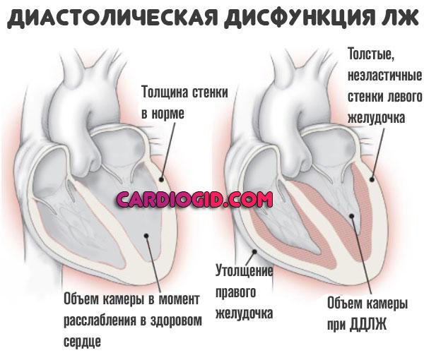 Диастолическая дисфункция левого желудочка — причины появления патологии, оценка ее опасности | dlja-pohudenija.ru