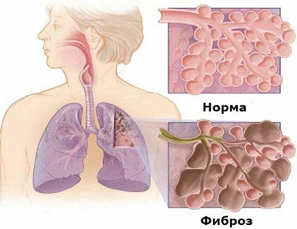 Пневмофиброз легких: что это, симптомы, лечение - prorak.info