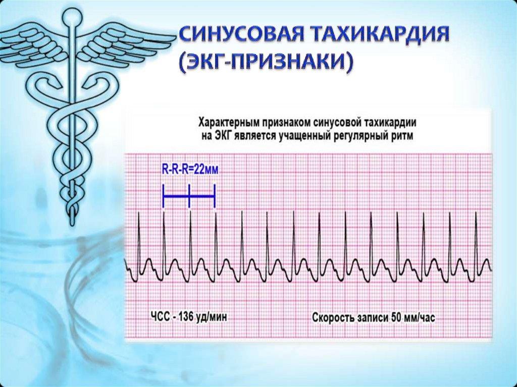 Синусовая тахикардия сердца: что это такое, опасно ли, симптомы, причины и лечение