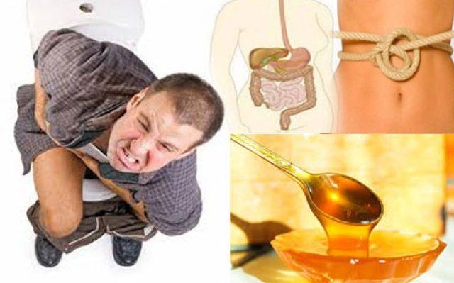 Спастический запор — симптомы и лечение