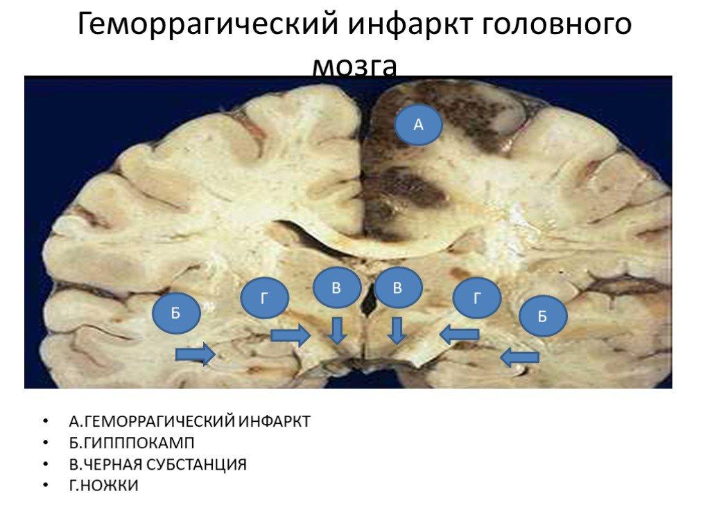 Инфаркт мозга - это... что такое инфаркт мозга?