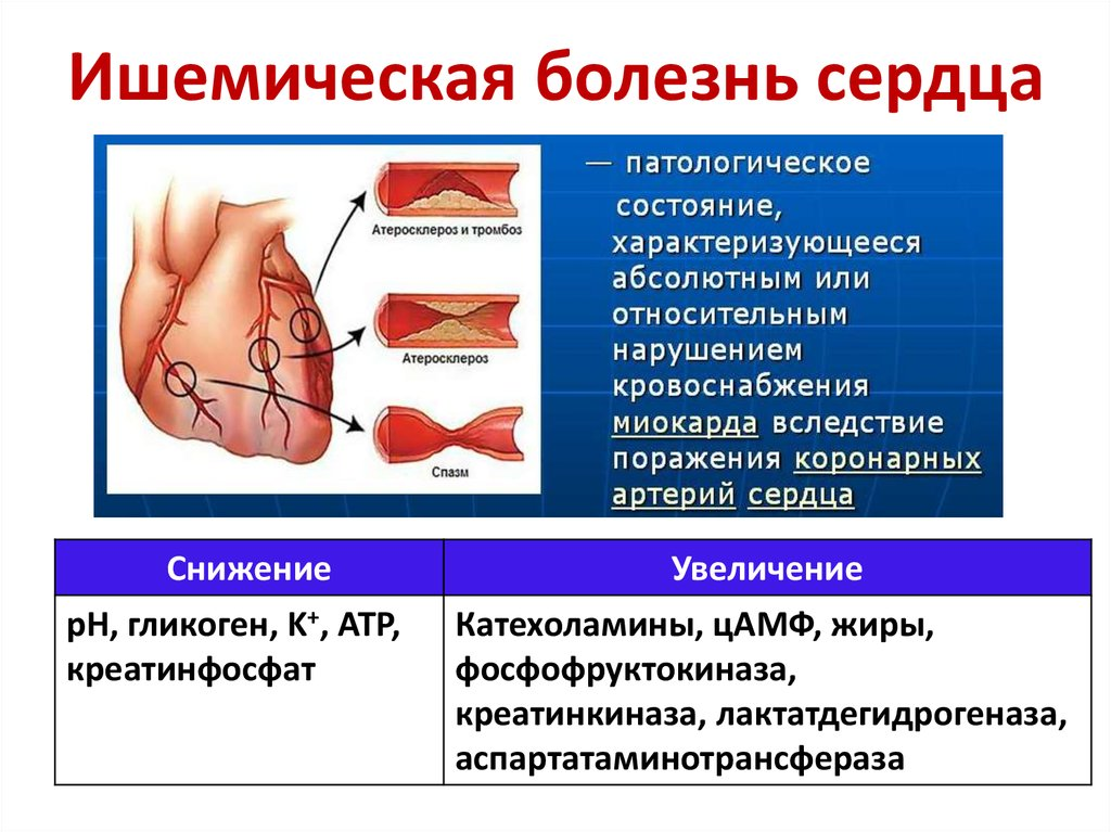 Ишемия или ишемическая болезнь сердца (ибс) – что это такое