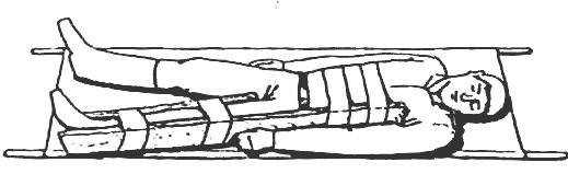 Что такое иммобилизация поврежденной конечности. иммобилизация конечности это. срочная помощь: доставляем в больницу
