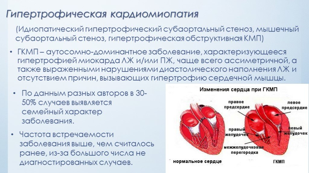 Кардиомегалия - лечение, причины, симптомы, диагностика