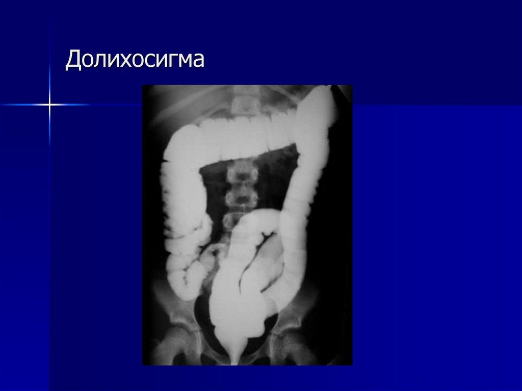 Долихосигма кишечника. что это такое?