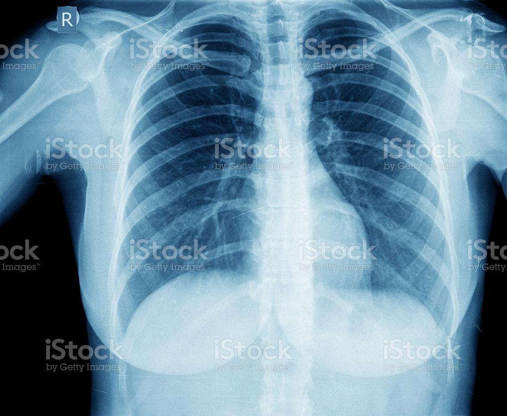Боль в грудной клетке посередине: о чем сигнализирует симптоматика