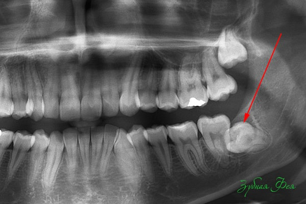 Ретинированный и дистопированный зуб: показания и противопоказания к удалению, правила ухода, осложнения