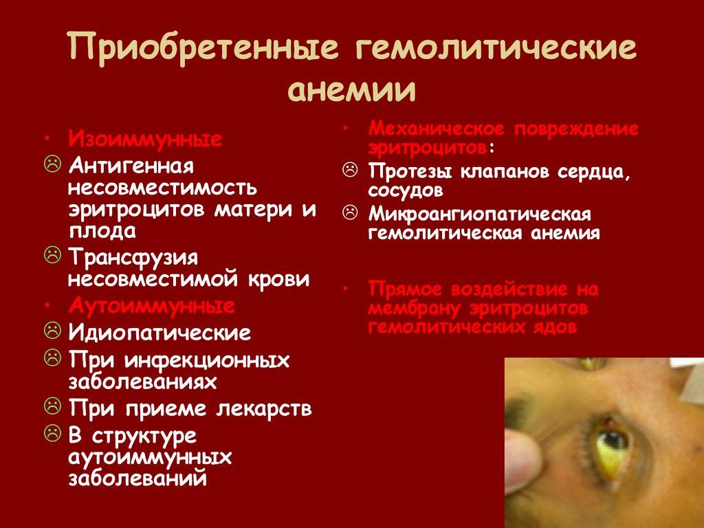 Гемолитическая анемия у взрослых
