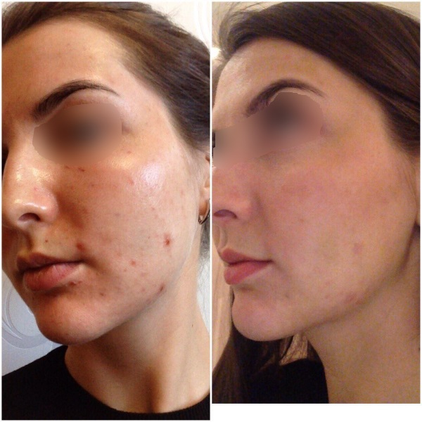 Плазмолифтинг для лица: всё, что нужно знать о процедуре