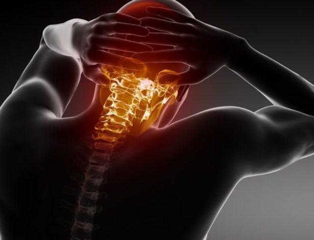 Цервикокраниалгия: что это за диагноз на фоне шейного остеохондроза - я здоров