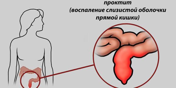 Катаральный проктит: причины, симптомы, лечение катарального проктита