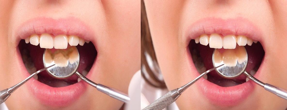 Причины возникновения зубного камня - симптомы, лечение и причины
