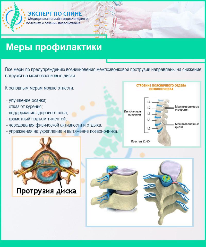 Задние протрузии межпозвонковых дисков - симптомы, причины, виды выпячивания, профилактика