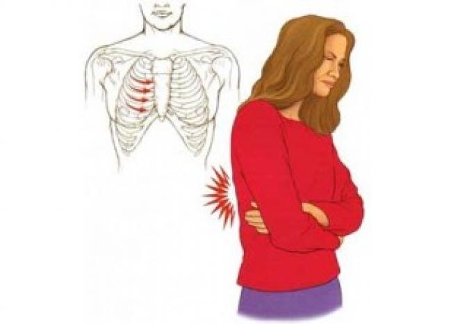 Межреберная невралгия - что это такое, симптомы и лечение в домашних условиях