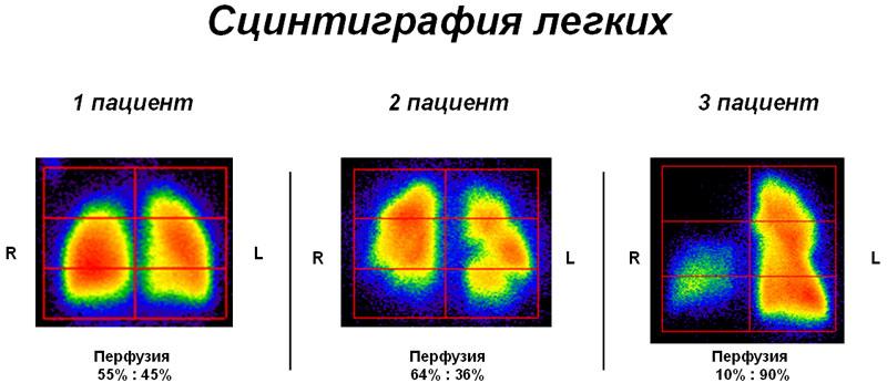 Сцинтиграфия щитовидной железы: что это такое