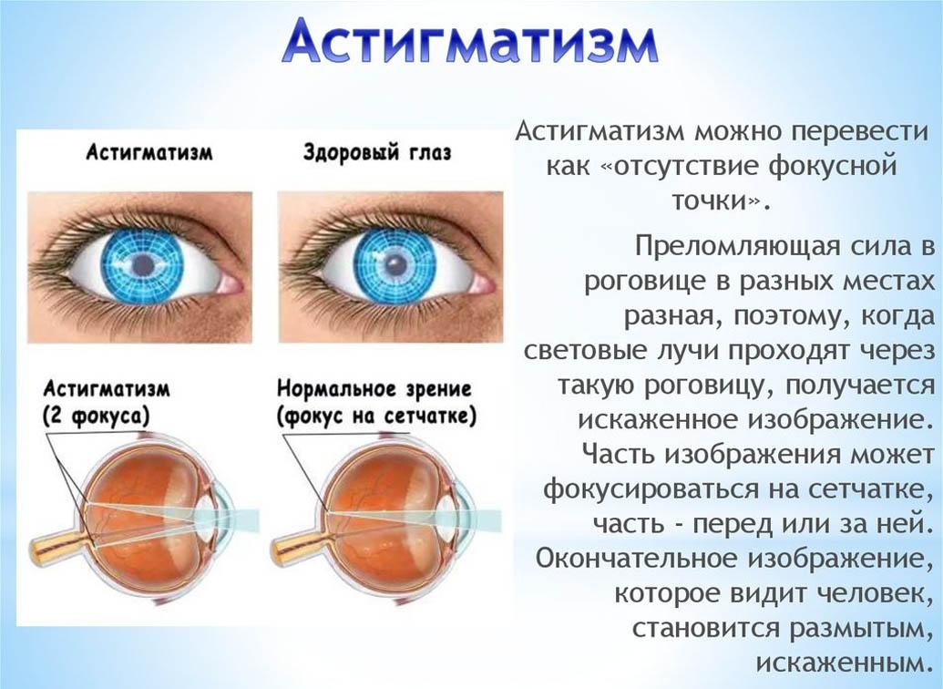 Дальтонизм - причины, симптомы, виды, диагностика и лечение