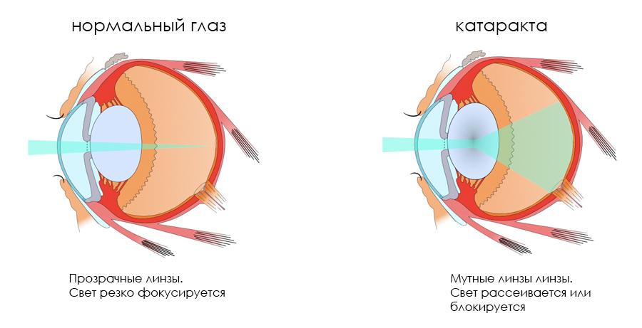 Хрусталик глаза: строение и функции | заболевания хрусталика
