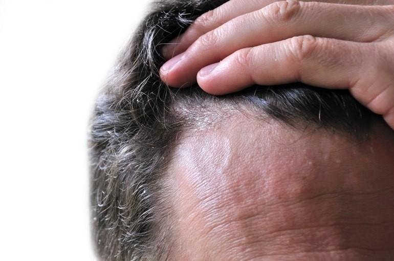 Белый налет на головке у мужчин - основные причины и фото!