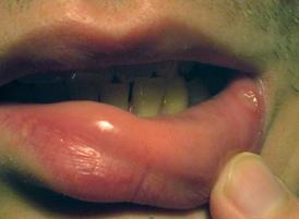 Как быстро вылечить стоматит во рту: полезные советы, список медикаментов