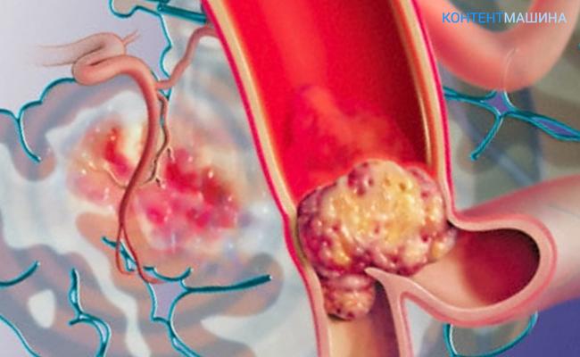 Атеросклероз аорты сердца – что это такое, симптомы, принципы лечения