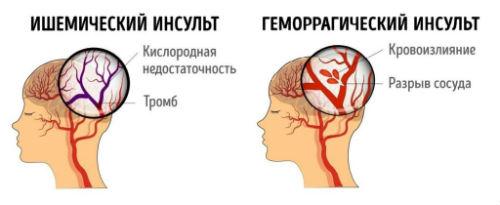 Стволовой инсульт: симптомы, современная реабилитация | medded.ru