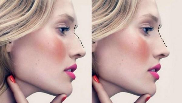 Ринопластика кончика носа - цена | ринопластика носа