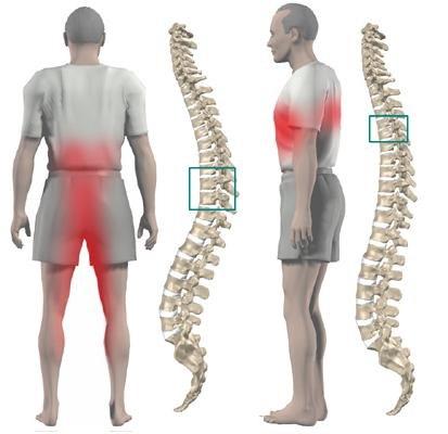 Дорсопатия шейного отдела позвоночника - лечение