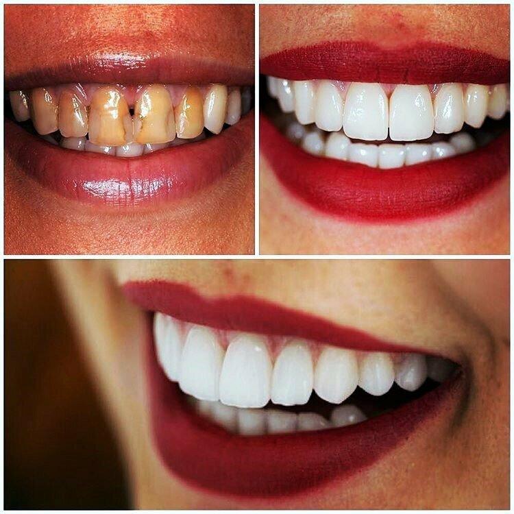 Виниры на передние зубы - цена, установка, отзывы, фото до и после