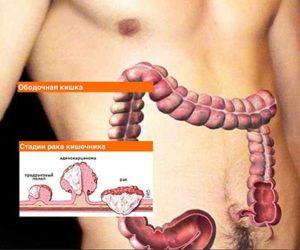 Дивертикулез кишечника: симптомы и лечение у взрослых