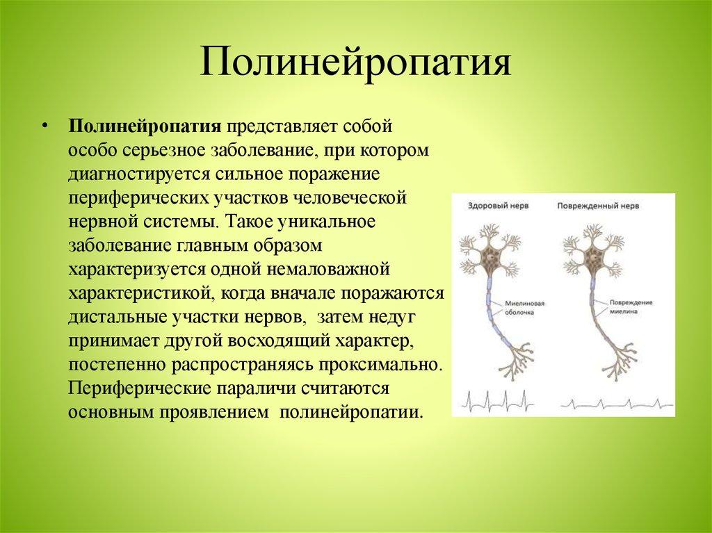 Что такое полинейропатия: причины, виды, симптомы и признаки, лечение полинейропатии в москве