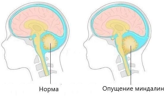 Цервикокраниалгия на фоне шейного остеохондроза: лечение, что это за болезнь, симптомы и диагностика