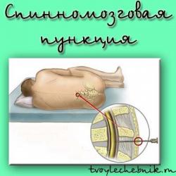 Пункция: больно ли?   «московский доктор»