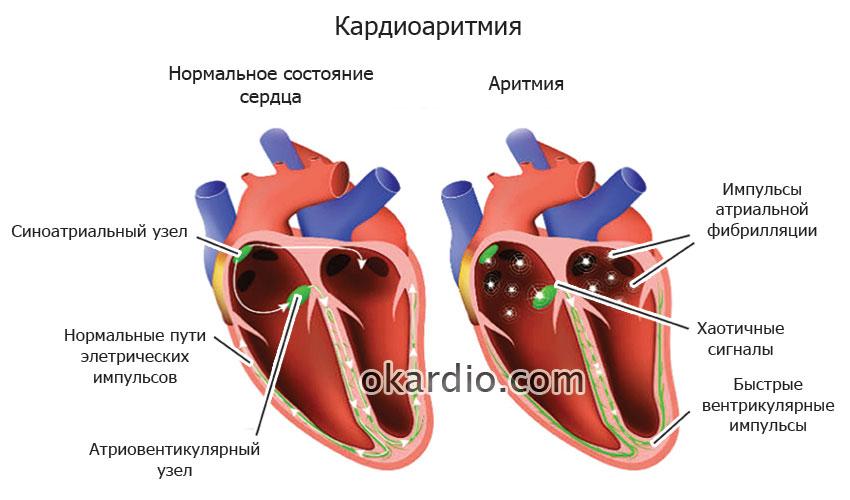 Аритмия сердца - симптомы, причины и лечение