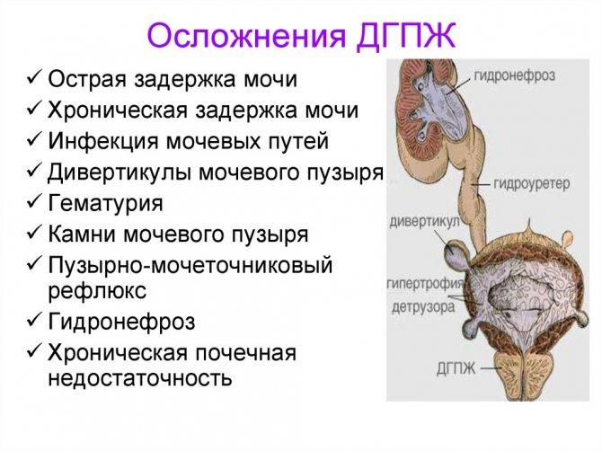 Дгпж предстательной железы: что это такое, причины, лечение