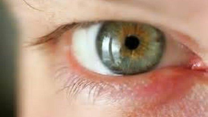 Куриная слепота у человека (гемералопия): симптомы, когда плохо видишь в темноте, причины, виды, диагностика, лечение (витамины, питание, народные средства)
