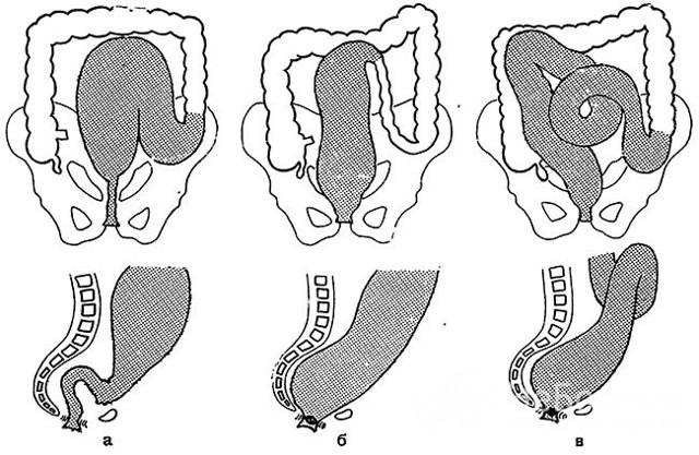 Как вылечить долихосигму кишечника у взрослого человека