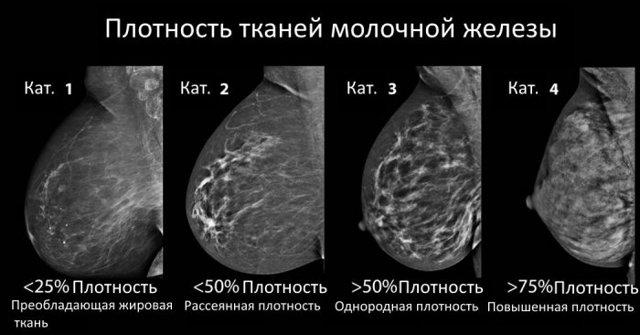 Плотность ткани молочной железы: каков риск озлокачествленияпарашистай плотность ткани молочной железы: каков риск озлокачествления