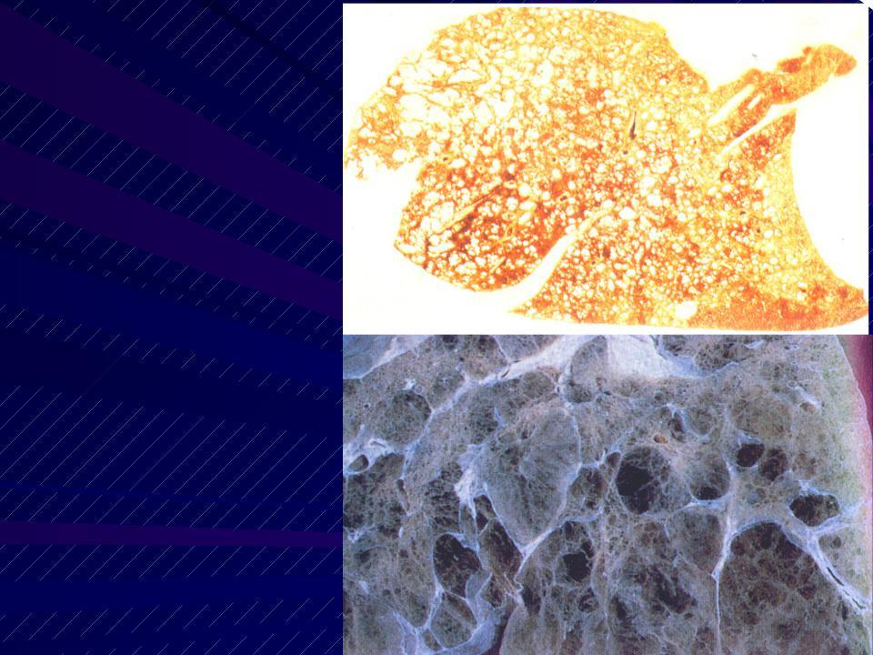 Эмфизема легких - пневмосклероз: классификация, причины, симптомы, диагностика, лечение, прогноз и профилактика
